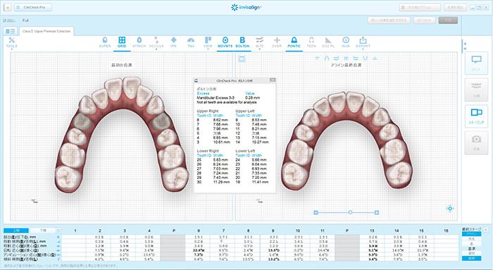 3Dデジタル技術を使用した治療のプランニング