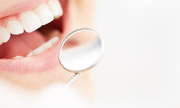 矯正中でも可能な虫歯治療 (精密治療&MI治療)