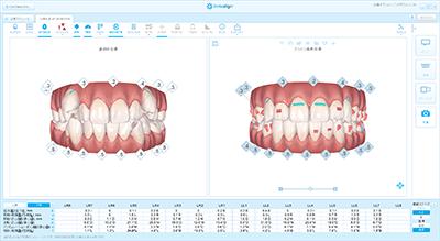歯列全体の治療計画のシミュレーション『クリンチェック』